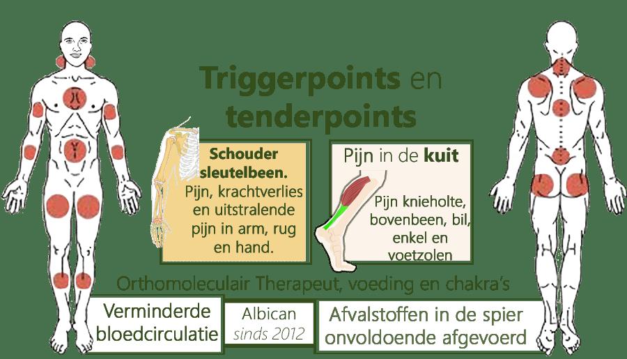 Triggerpoints en tenderpoints, Schouder sleutelbeen. Pijn, krachtverlies en uitstralende pijn in arm, rug en hand. Pijn in de kuit, knieholte, bovenbeen, bil, enkel en voetzolen